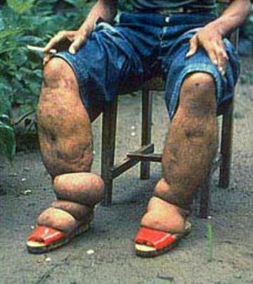 Lymphatic filariasis sufferer