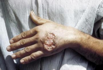 Skin ulcer caused by Leishmaniasis (credit: CDC)