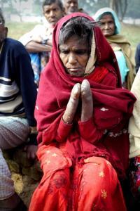 Leprosy sufferer, Munger Leper Colony India